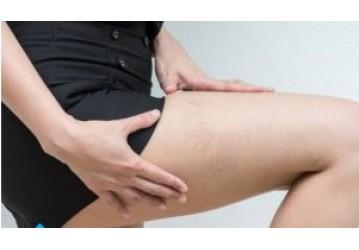 É possível ter varizes, mas não ter sintomas como queimação e cansaço nas pernas