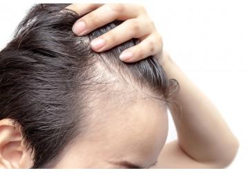 É possível ter entradas no cabelo, mas não desenvolver calvície